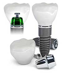 Greenville Dental Implants