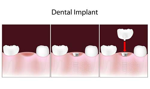 Dental Implants in Greenville