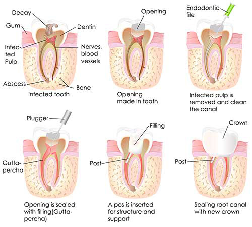 Greenville Root Canal